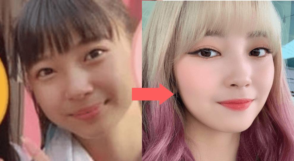 マユカの鼻の変化