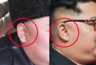 金正恩の耳の形比較