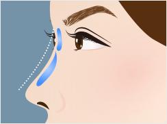 ヒアルロン酸注入の鼻